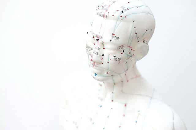 Akupunktur - Was genau, kann mit Akupunktur behandelt werden